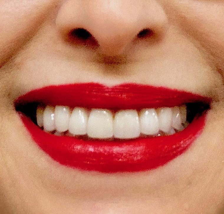 SMILE ENHANCEMENT