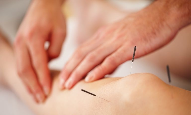 Acupuncture is here! - Acupuncture is a form of alternative medicine and a key component of traditional Chinese medicine. It activates the body's own self-healing. Private sessions available now. Community sessions coming August 2019.