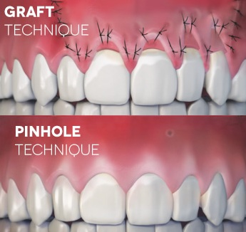 Pinhole Surgical Technique - A 'breakthrough' technique for gum recession and treatment options for receding gums.