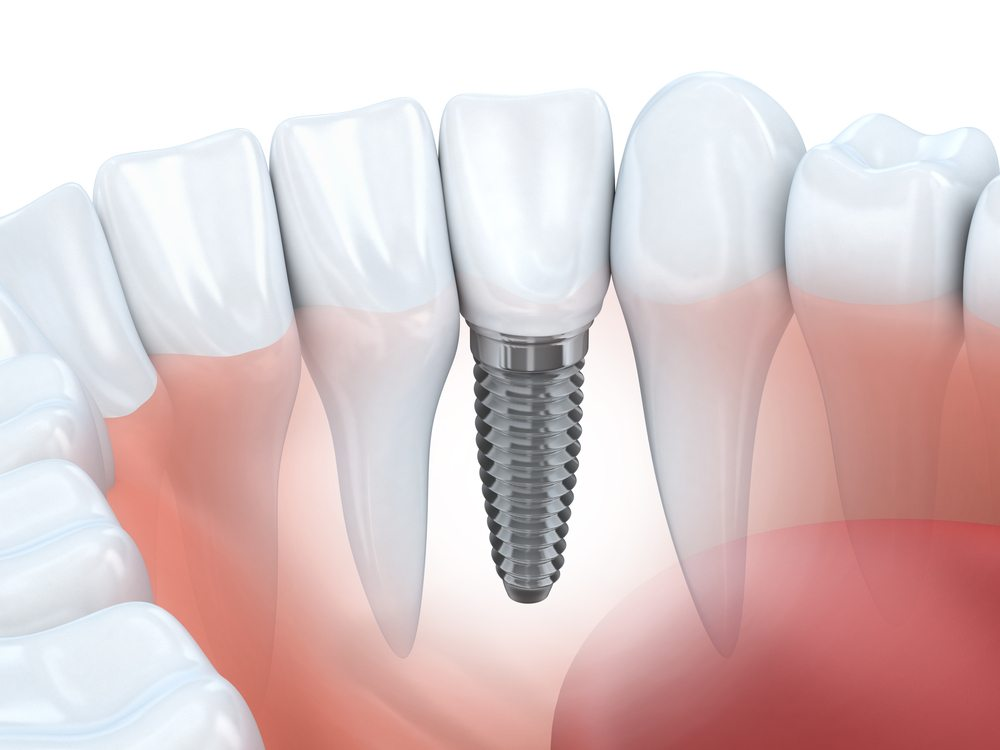 Dental Implants - Dental implants are surgically placed in your jaw bone where they become fused with the existing bone mass. This results in a structure that very closely resembles that of a natural tooth root and provides needed stimulation to the bone and soft tissue.