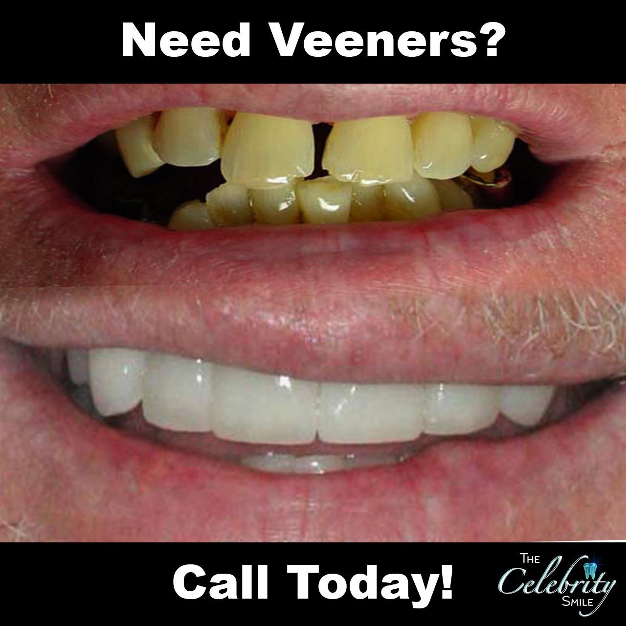 need veneers.jpg