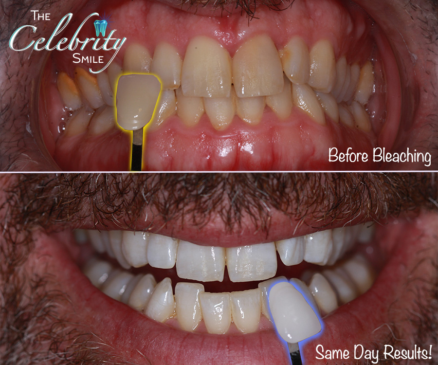 Teeth Whitening - Over the years, your teeth will gradually lose its enamel (your tooth's top layer coating) leading to yellow or discolored teeth. Smoking, drinking coffee, and eating staining foods accelerate this unwanted change. Getting your teeth professionally whitened can potentially lighten the color of your teeth by several shades! Your Chino Dentist will make Custom bleaching trays designed to fit only your mouth are included with a nighttime touch-up kit. Let's reach your desired shade of white!