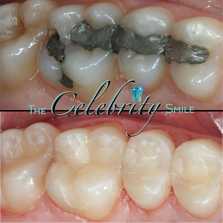 Fillings - A filling is the removal of the decayed portion on top or inside a tooth, then replaced with long-lasting material. We only use All-White Composite for our fillings- simply because our patients deserve the very best. Old Black Amalgam fillings are made with Mercury, which is an eyesore and questionably unhealthy. White Composite fillings when made the correct way will last indefinitely, while renewing the natural appearance and function of the tooth.