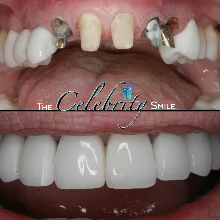 Crowns - Crowns can serve a dual purpose: both Cosmetic, and Restorative treatments. Badly damaged teeth beyond rescue can be restored to its fullest potential using Dental Crowns. After the infection and decay is removed from the tooth, your dentist in Chino will bring your tooth to like-new conditions by placing a Porcelain or Zirconium covering over the restoration, blending cohesively with your natural smile.