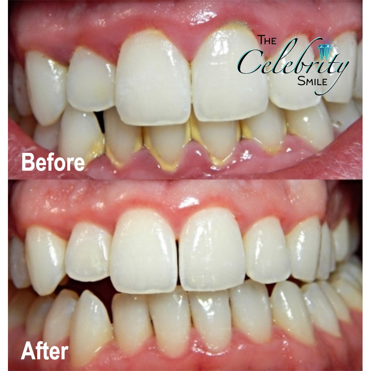 """Gum/Periodontal Disease - A mouth maintained by poor brushing & flossing tactics can lead to more than just bad breath. Without good oral hygiene and routine checkups, it's easy to accrue Plaque buildup- which leads to Calculus and Poor Gum Tissue. """"Calculus"""" is multiple layers of hardened plaque (typically a yellowish tone) found at or below the gumline. Subgingival (Under the Gumline) infections are cleansed by your Chino Dentist using tools reaching areas a toothbrush can not."""