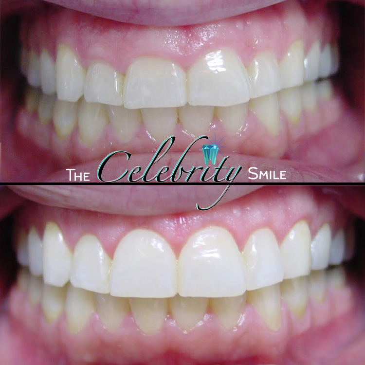 Crown Lengthening Surgery - Gingivectomy (Crown Lengthening Surgery) is the process of re-sculpting your natural gum line, to give your smile a better aesthetic appearance. Patients born with a gummy smile show less tooth structure. Lengthening your tooth appearance will give you a Brighter and Wider desired smile, without any major cosmetic dentistry.