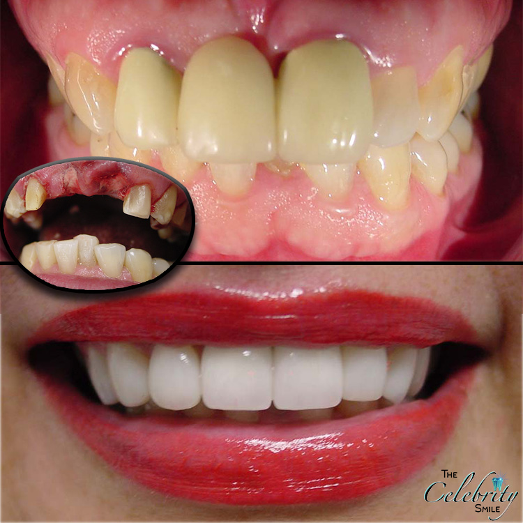 Dentist in chino Dental Implant