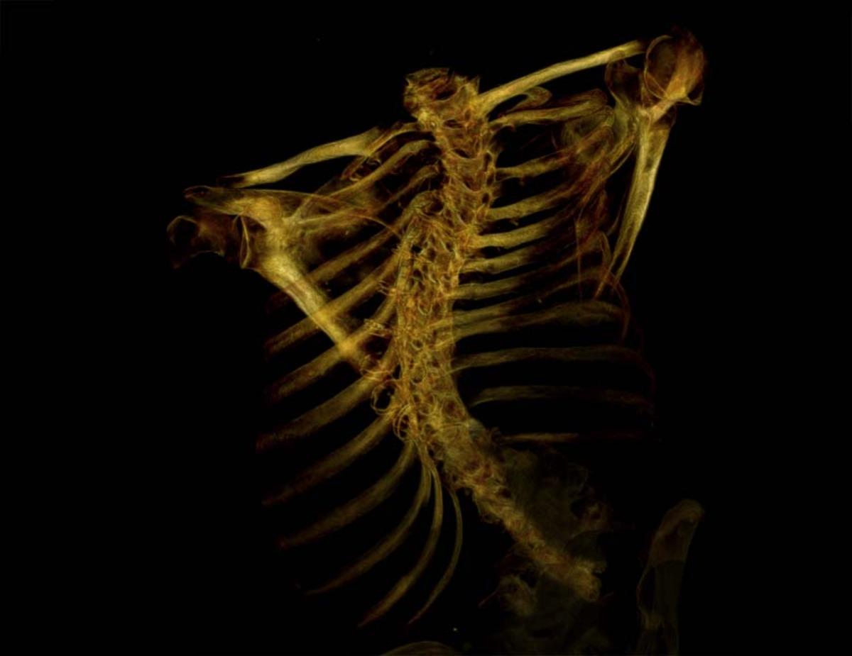 Gold-black skeleton (#11)