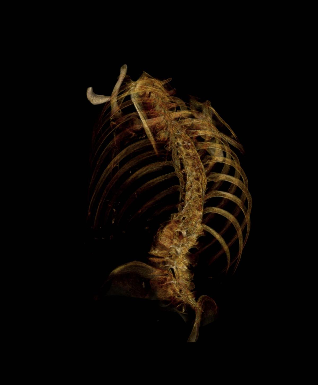 Gold-black skeleton (#8)