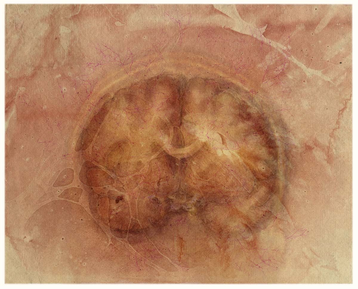 Cerebrum, coronal view, with floating colors (rosy kozo)