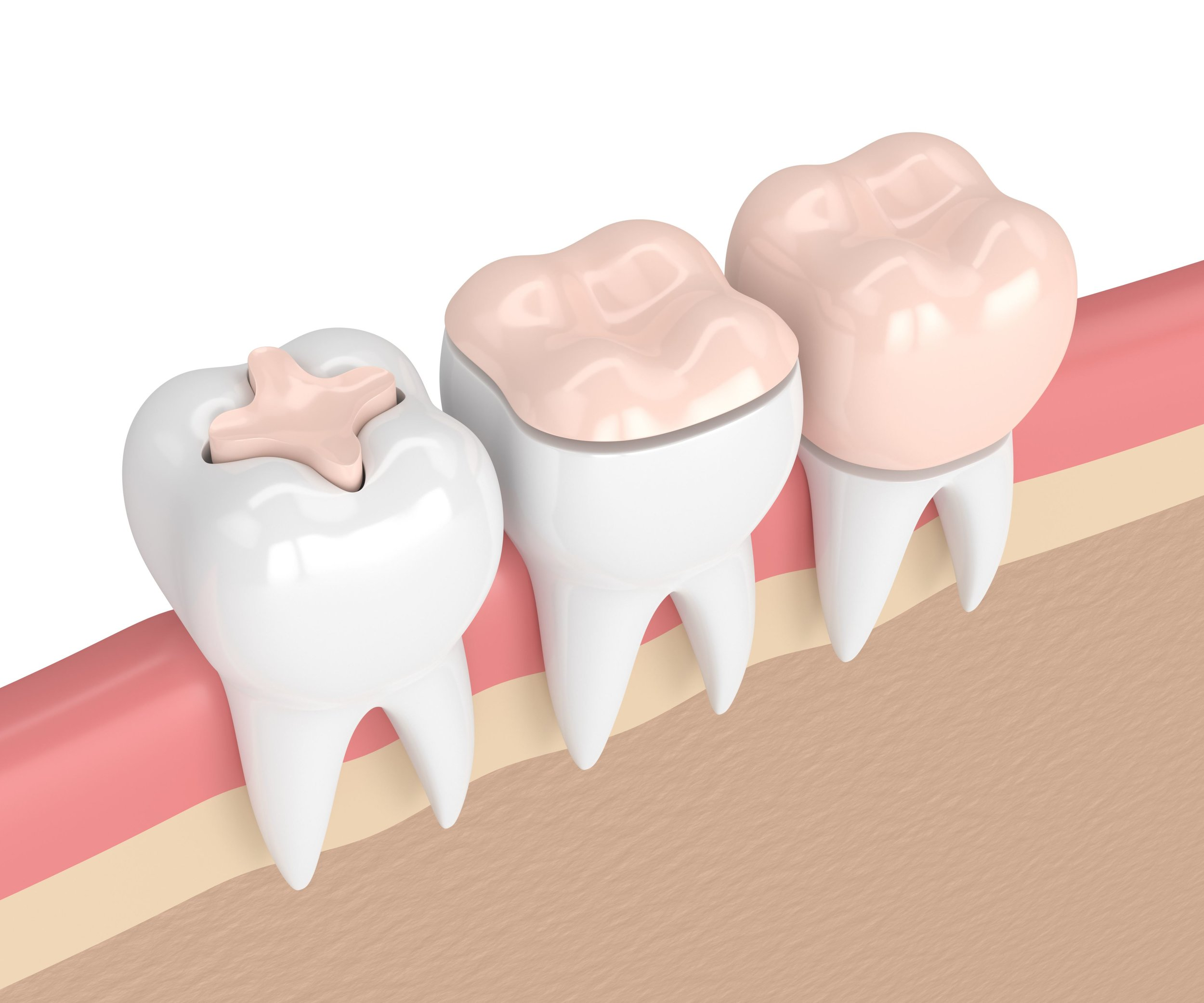 Dental-crown-treatment.jpeg