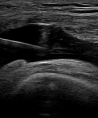Example of ultrasound guided knee injection