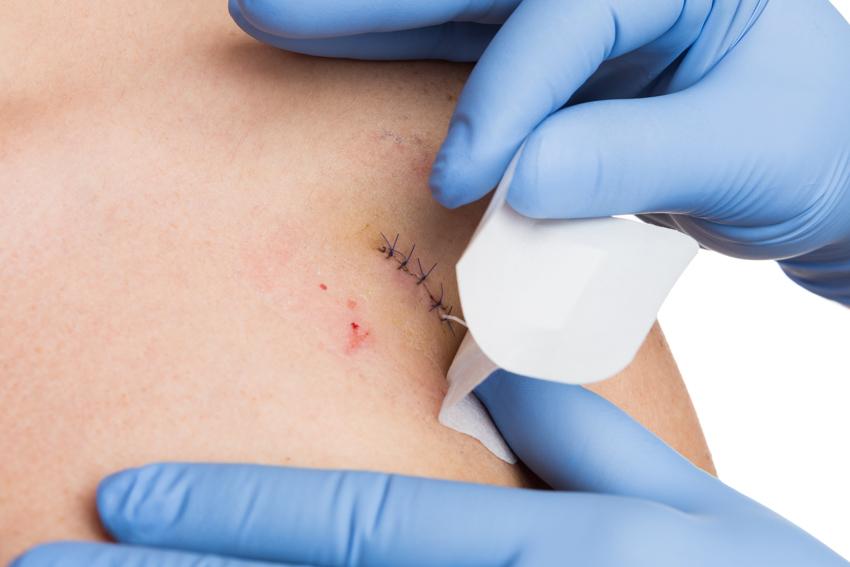 Skin Surgery Dermatology.jpg