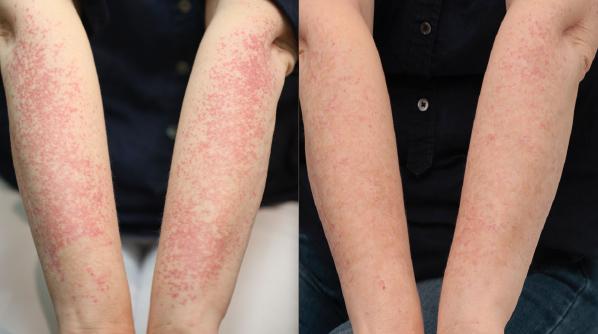 Broken Blood Vessels Arms Treatment Dr Nina WInes Dermatologist Northern Sydney.jpg