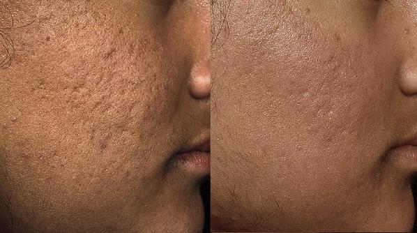 Acne Scarring Treatment Dr Nina WInes Dermatologist Northern Sydney.jpg
