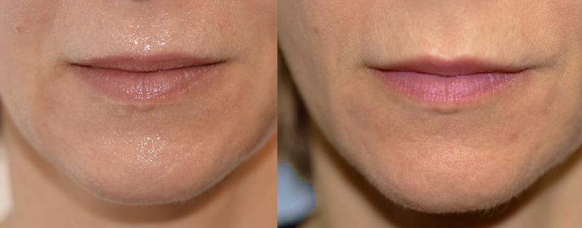Volume Loss Fillers Dr Nina WInes Dermatologist Northern Sydney.jpg