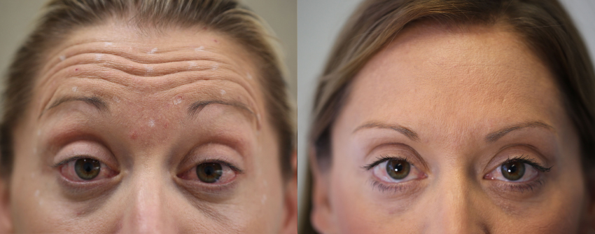 Injectables Treatment at raised eyebrows Dr Nina WInes Dermatologist Northern Sydney.jpg