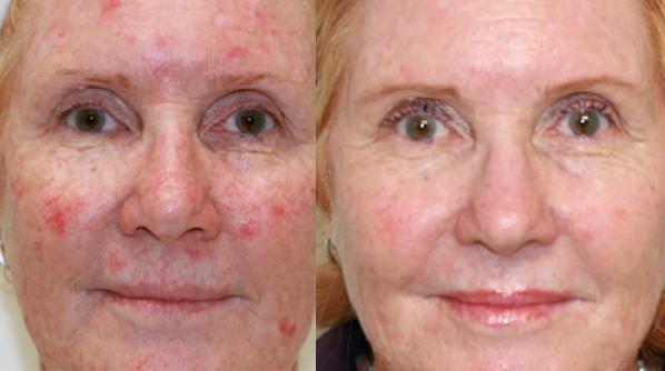 Sun Spot Removal Treatment Dr Nina WInes Dermatologist Northern Sydney.jpg
