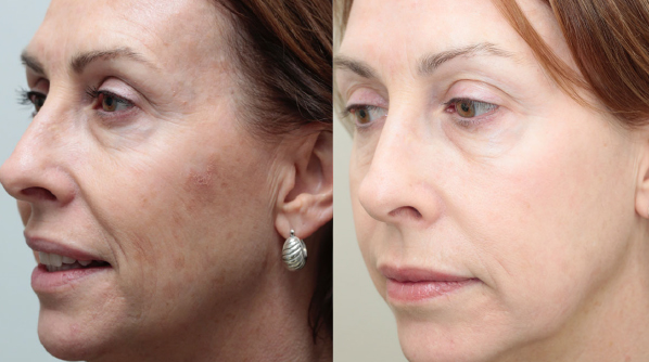 Before and after skin surface restoration.