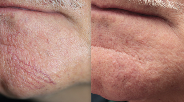 Before and after redness reduction treatment for red spots and broken blood vessels.