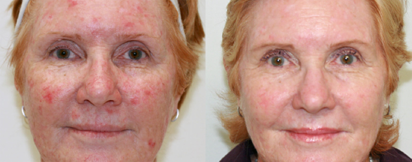 Before and after sun spot removal.