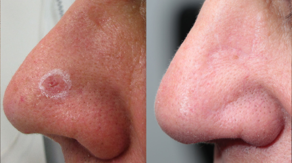 Excision: BCC nose with bilobe flap repair.
