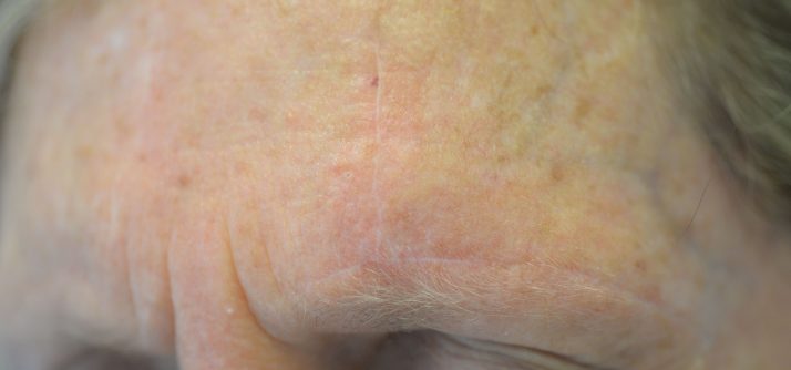 The final scar is placed in existing skin creases.