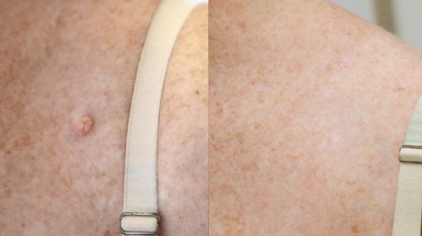 Shave removal: protruding mole.