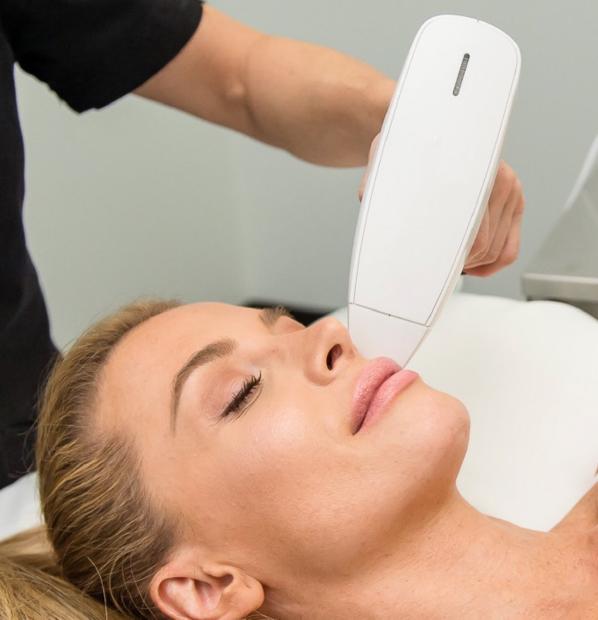 Photograph of skin tightening laser treatment.