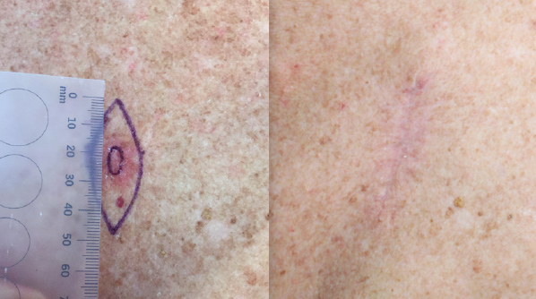 Melanoma pre and 6 weeks post excision.