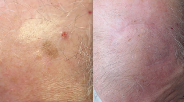 Melanoma Scalp pre & post surgery.