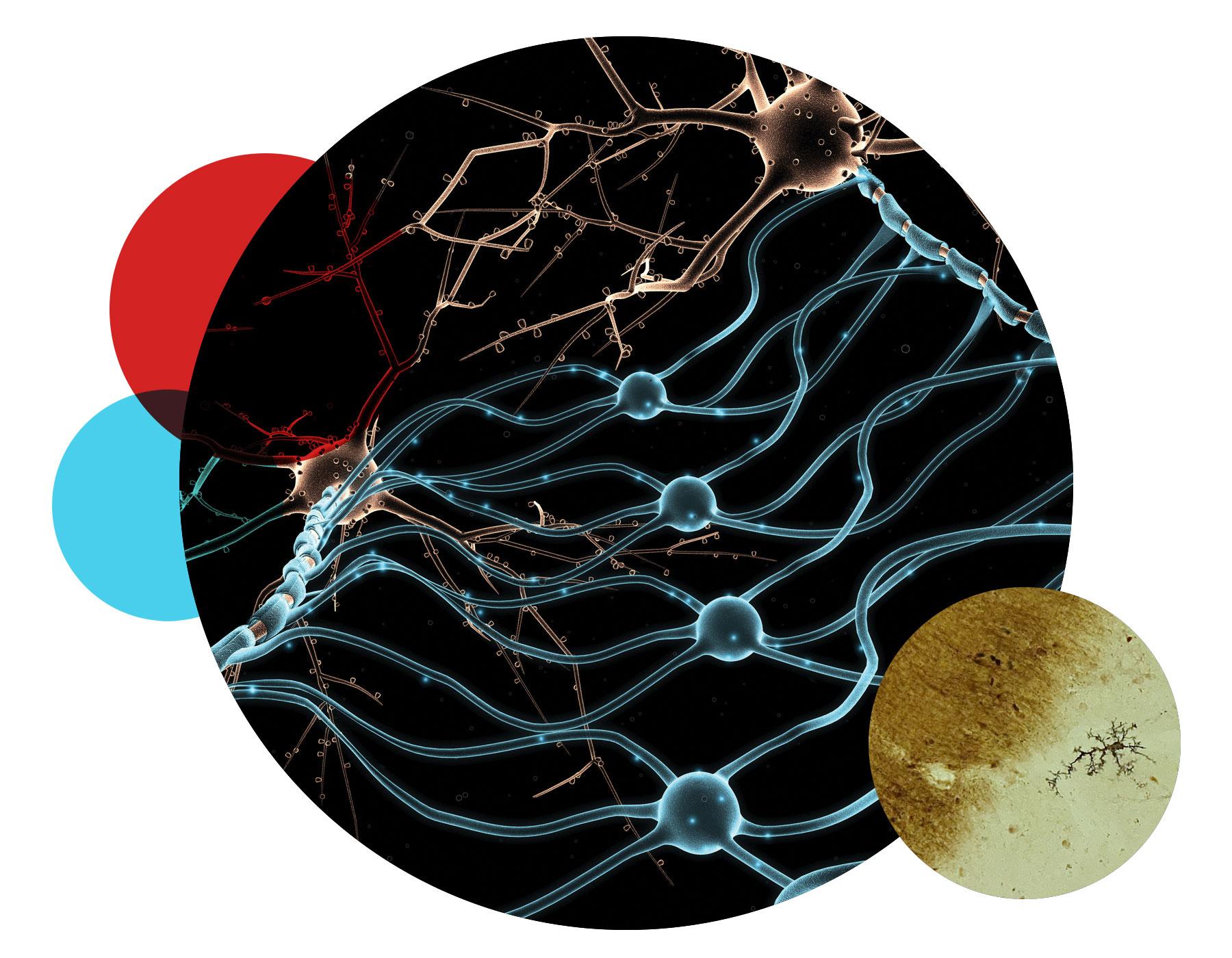 IMAGE: Neurohistology stain for reactive microglia