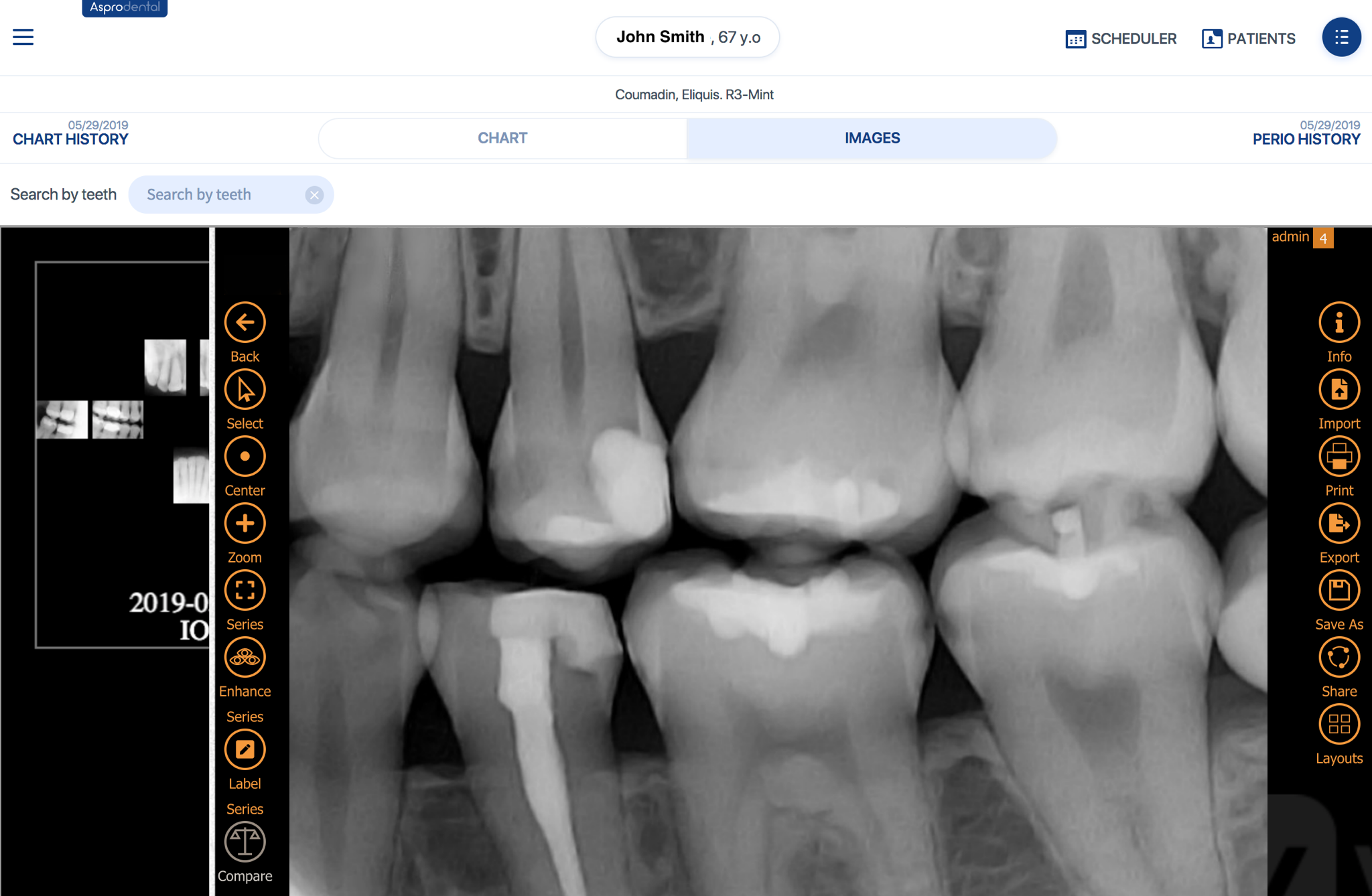 Clear, diagnostic x-rays - Capture and view your images immediately and upload to the cloud in the background. X-rays, intra-oral pictures, and cone beam images. It's all there, anywhere.