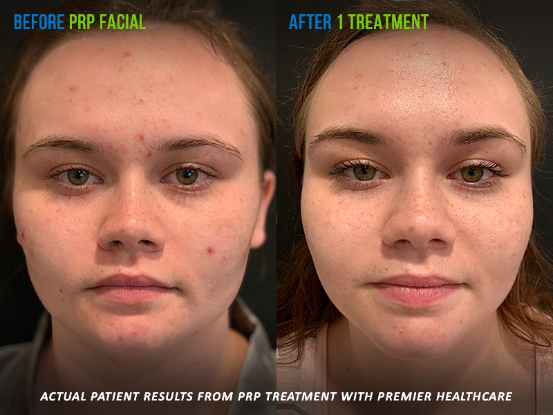 PRP Facial Treatment Before and After