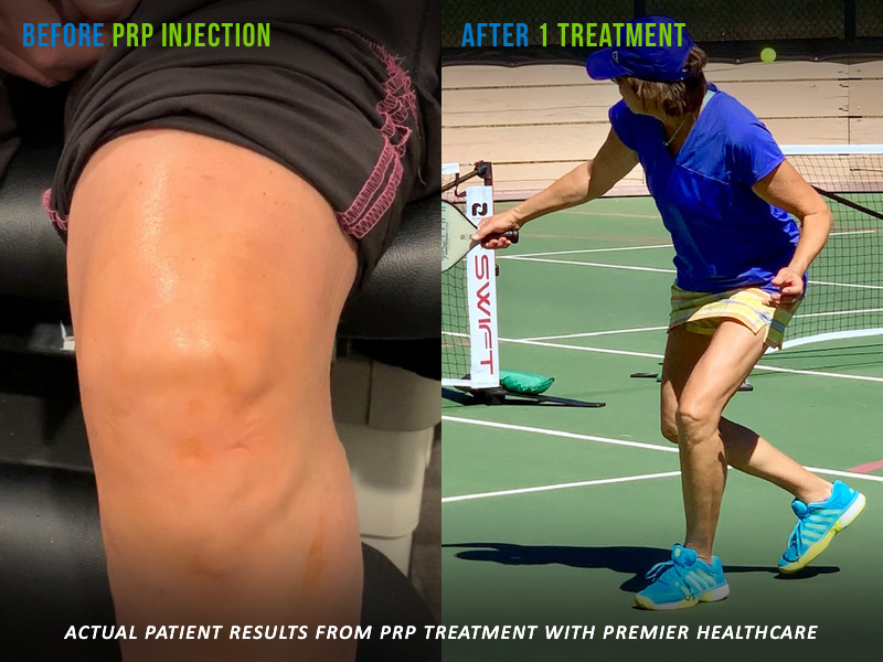 PRP Knee Injection Before and After