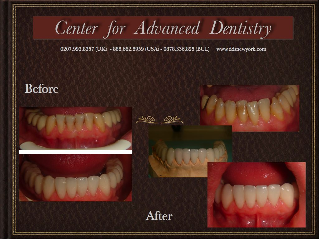 Center for Advanced Dentistry before & after