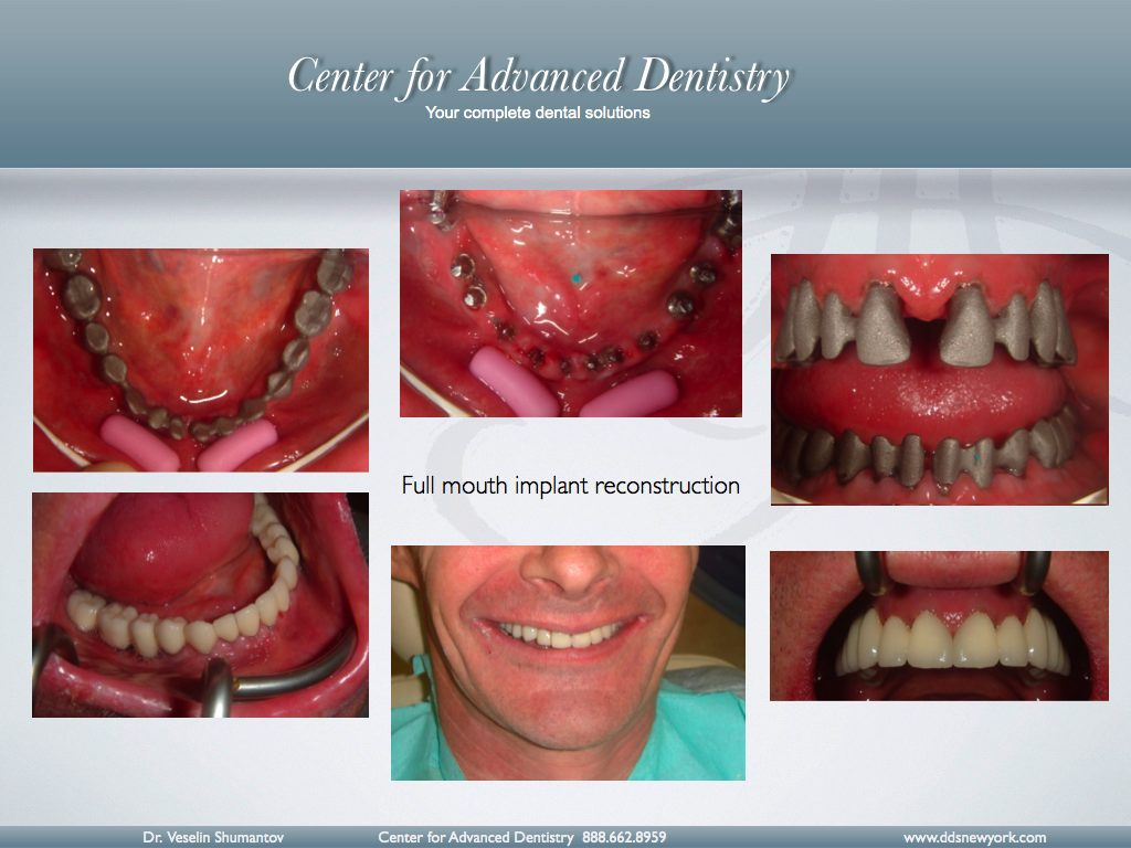 We used to do implant reconstructions with metal support: -