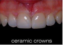 zirconia_crowns_n9py_luj8.jpg
