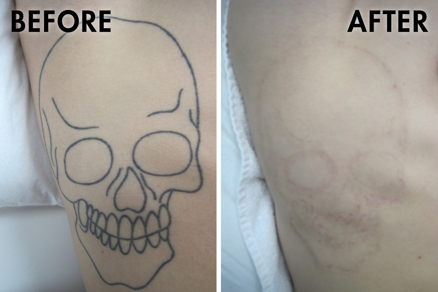 Tattoo_before_after.jpg