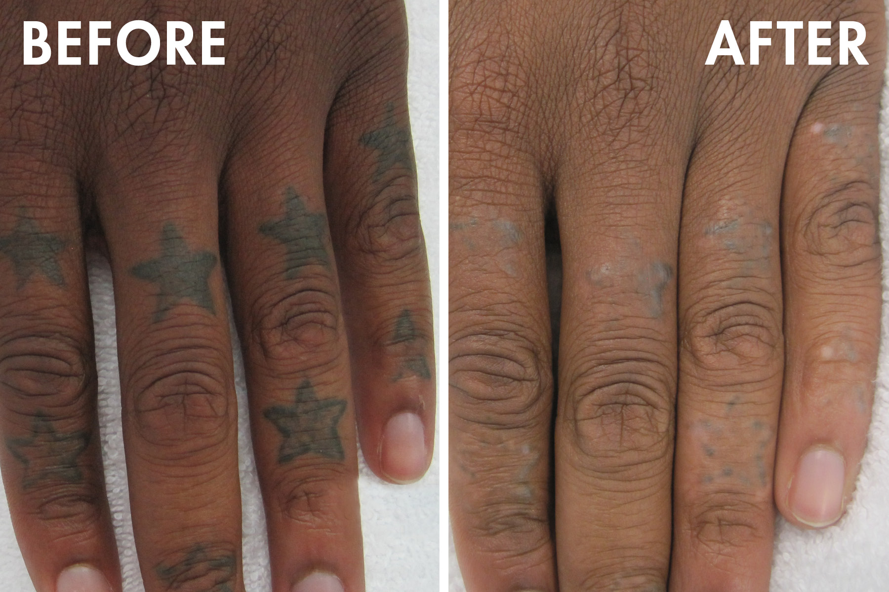 Tattoo_before_after3.jpg