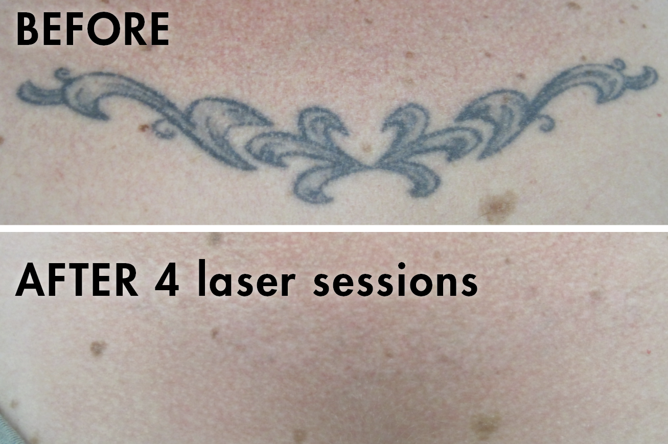 Tattoo_before_after2.png