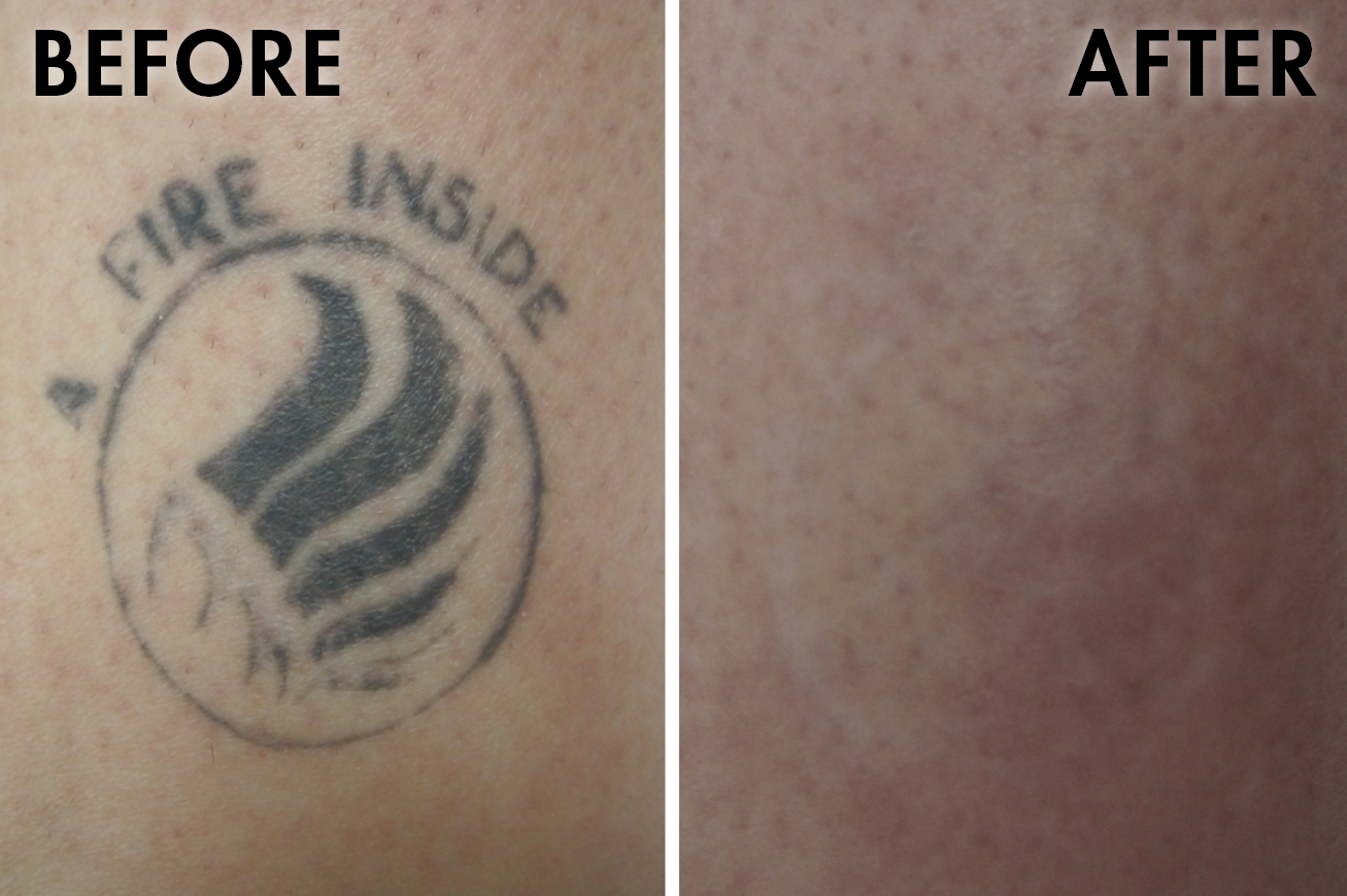 Tattoo_before_after5.png