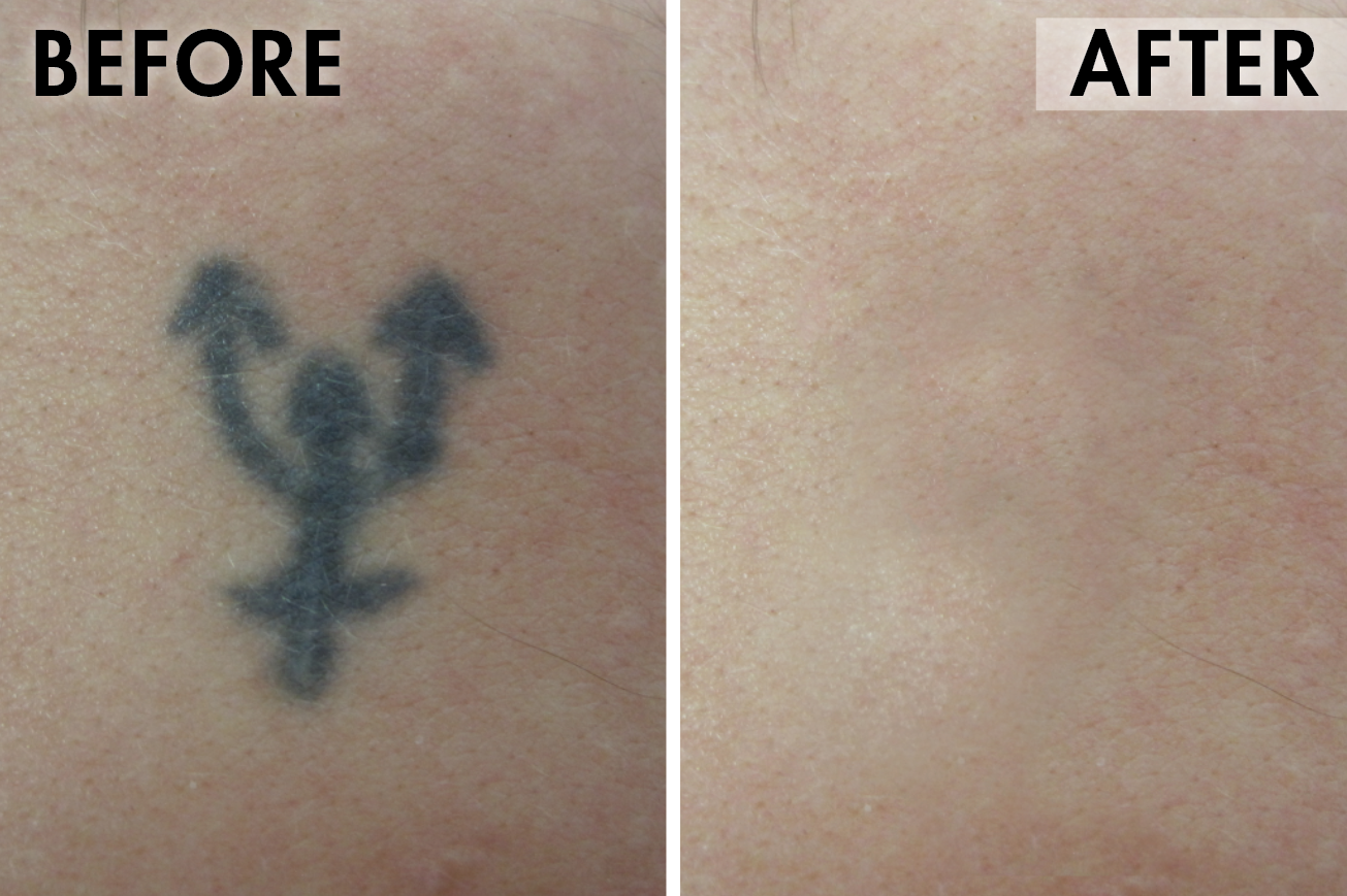 Tattoo_before_after1.png