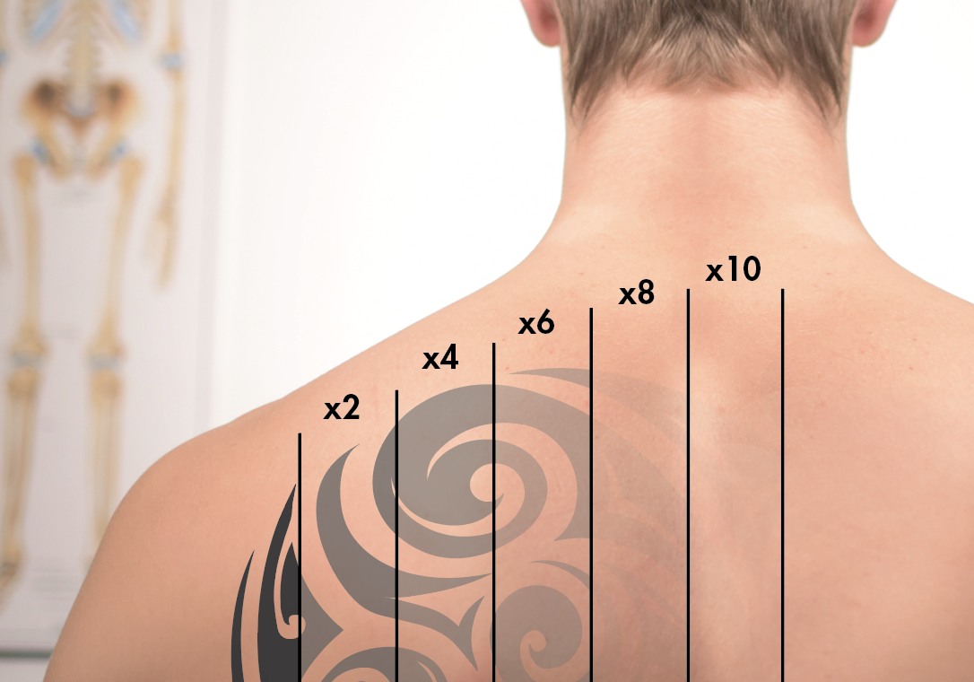 Laser tattoo removal - Most tattoos require 8 to 10 treatments. Depending on the age of the tattoo, the location, the type and color of ink used, and skin color and condition more treatments may be needed.
