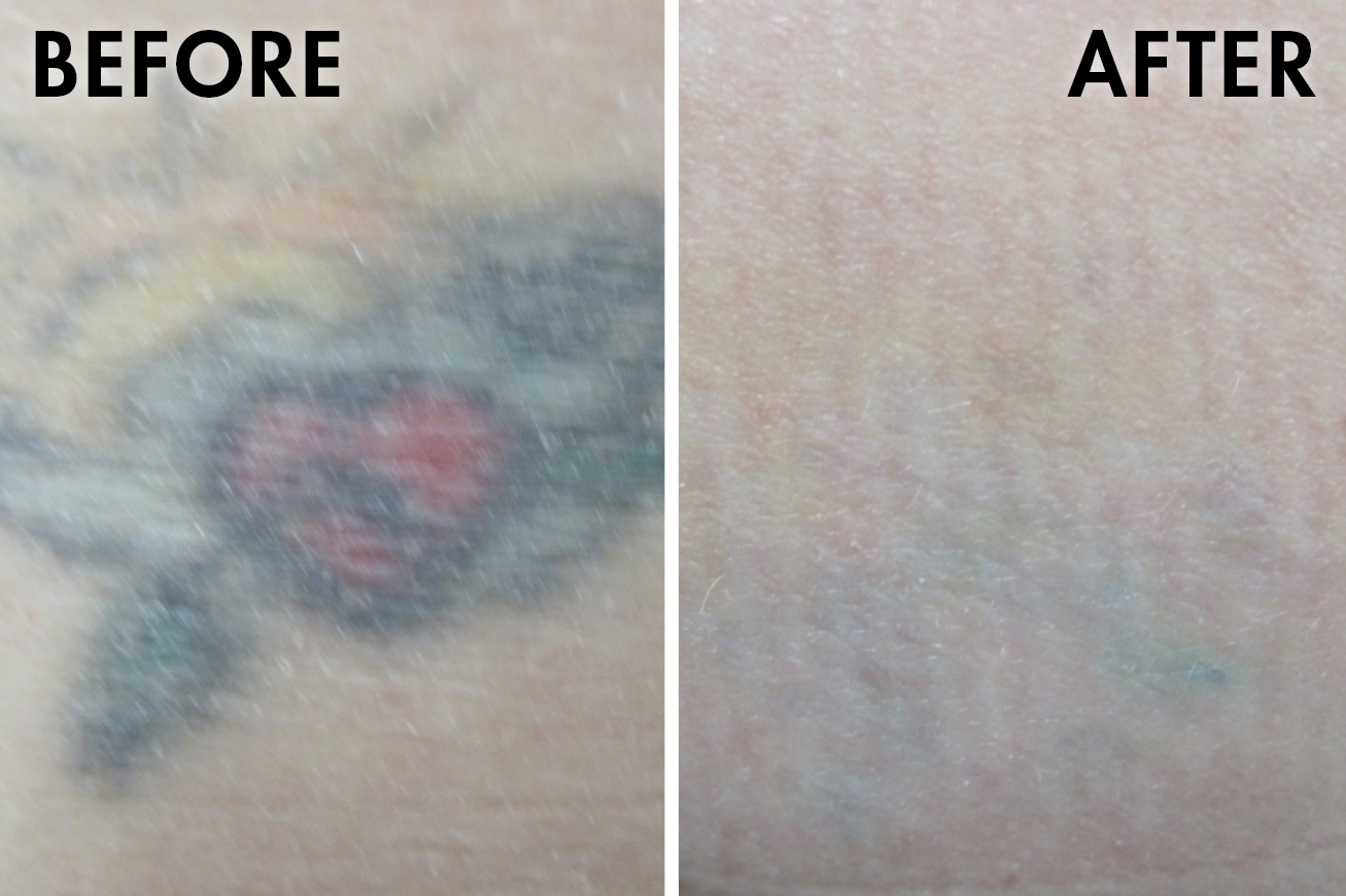 Tattoo_before_after10.png