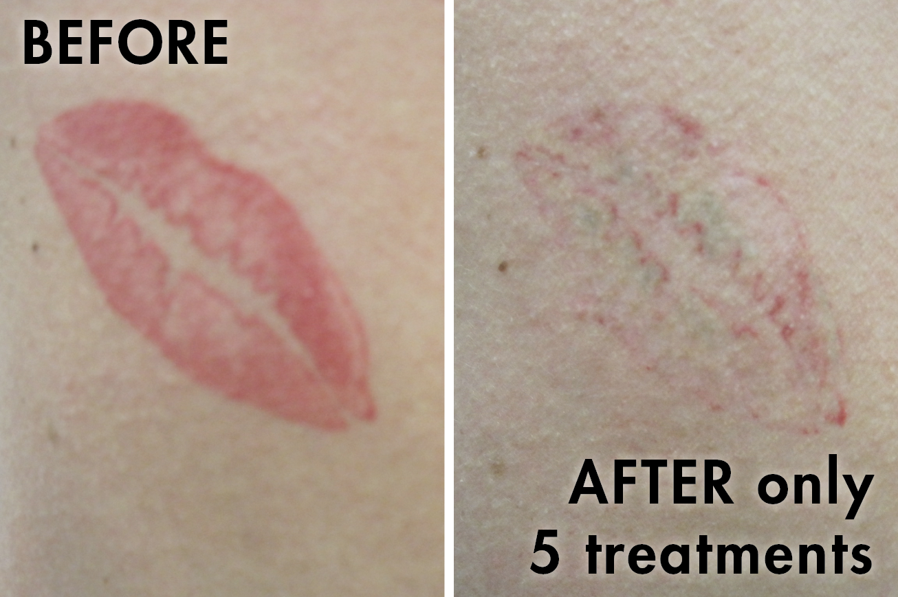 Tattoo_before_after11.png