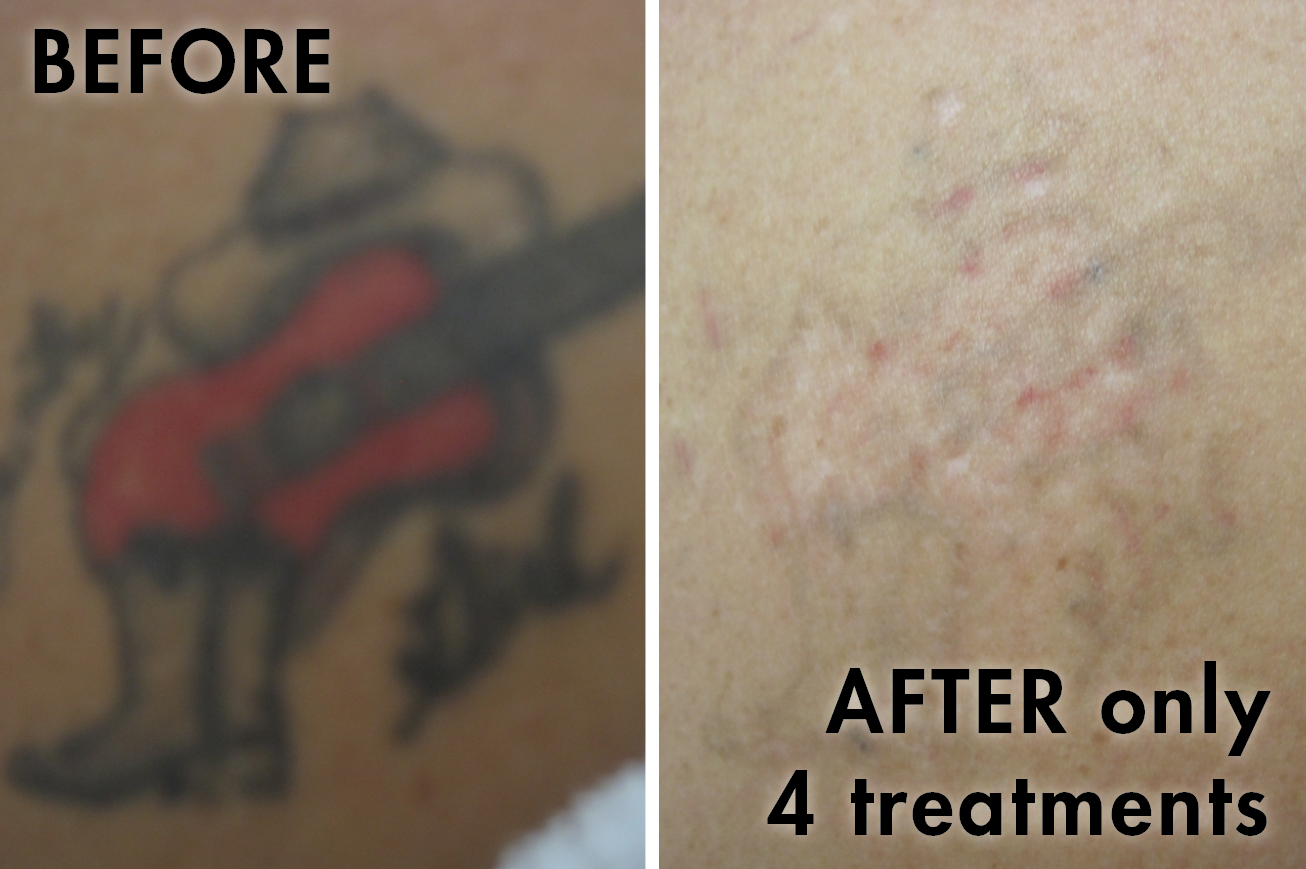 Tattoo_before_after12.png