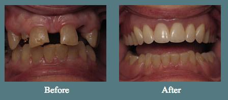 content_denise-zielinski-teeth.jpg