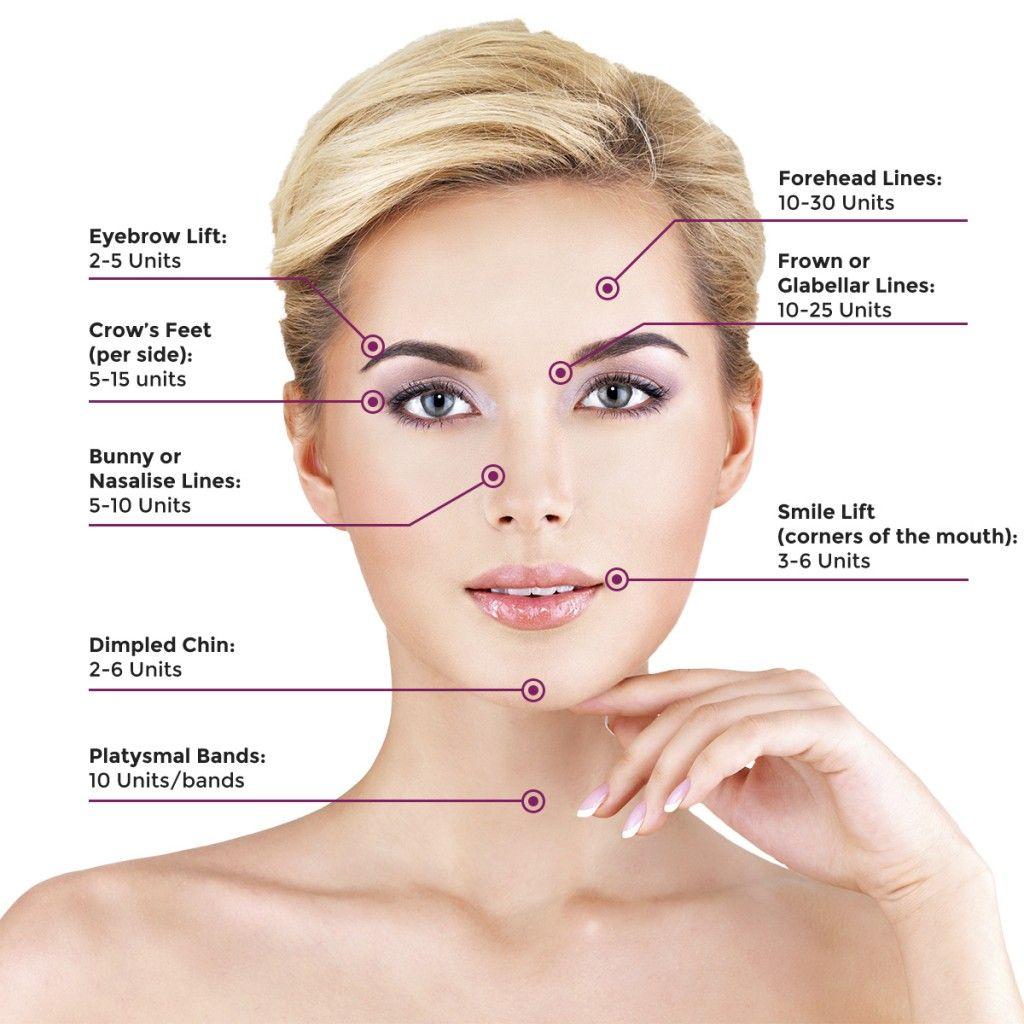 Botox_Areas.jpg