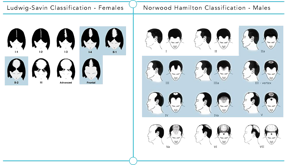 Hair Regeneration results vary depending on hair pattern classifications.